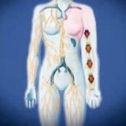 лечение лимфостаза ноги